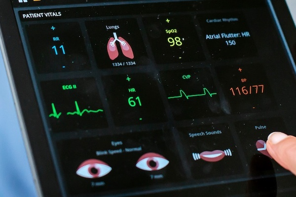 screen showing the vital signs of a patient